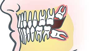 wisdom-tooth-extraction-290-164